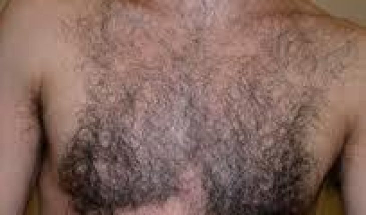 Chest Hair Removal Mighty Guide